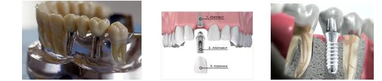 Мидодент- Протезирование зубов
